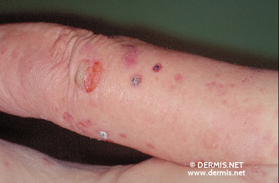 localisation: upper arms diagnosis: Bullous Pemphigoid