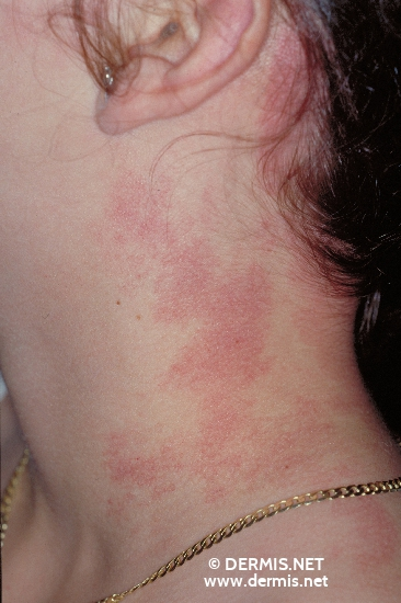 localisation: neck diagnosis: Phakomatosis Pigmentovascularis Port-Wine Stain