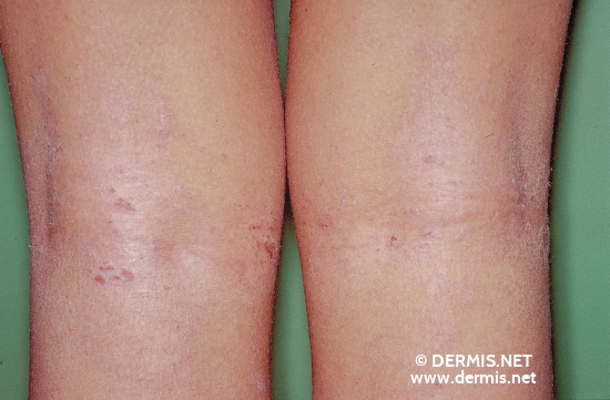 localisation: hollow of the knee diagnosis: Atopic Eczema