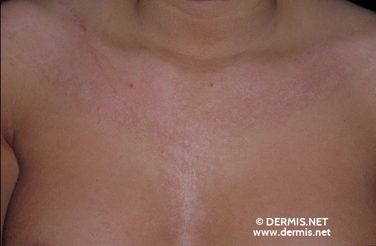 localisation: decolleté diagnosis: Atopic Eczema