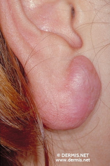 localisation: lobule of auricle diagnosis: Keloids in Scars