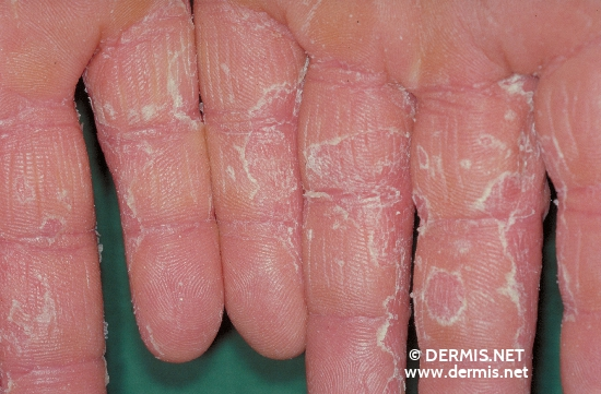 localisation: finger diagnosis: Pityriasis Rubra Pilaris Devergie