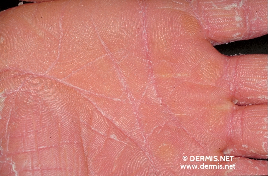 localisation: palms diagnosis: Pityriasis Rubra Pilaris Devergie