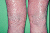 localisation: knee, diagnosis: Mycosis Fungoides
