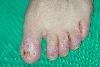 localisation: toe, diagnosis: Squamous Cell Carcinoma, Radiodermatitis, Chronic