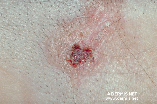 localisation: temples diagnosis: Basal Cell Carcinoma