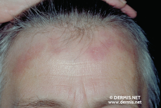 localisation: forehead diagnosis: Sarcoidosis of the Skin, Plaque Form