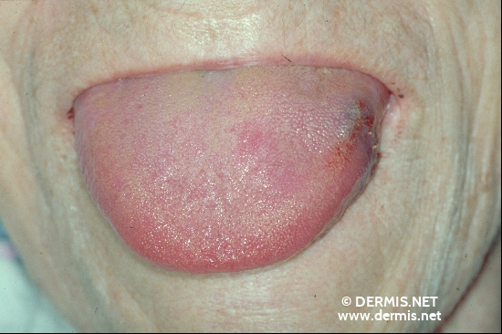 localisation: tongue diagnosis: Amyloidosis