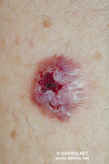 localisation: shoulder region diagnosis: Basal Cell Carcinoma