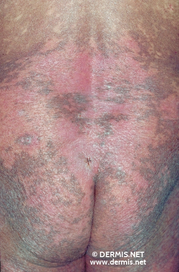 localisation: back diagnosis: Mycosis Fungoides
