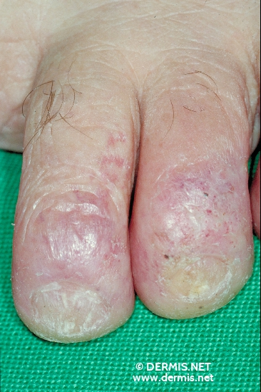localisation: toe diagnosis: Squamous Cell Carcinoma Radiodermatitis, Chronic