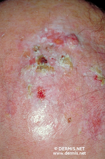 localisation: scalp diagnosis: Squamous Cell Carcinoma Actinic Keratosis