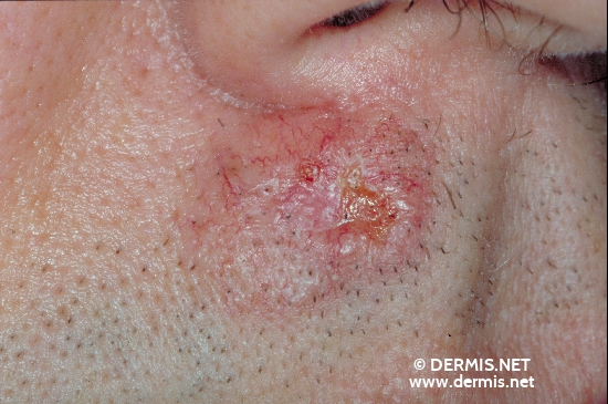 localisation: face diagnosis: Basal Cell Carcinoma