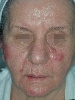 localisation: face, diagnosis: Lupus Erythematosus Tumidus
