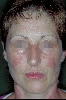 localisation: face, diagnosis: Discoid Lupus Erythematosus (DLE)
