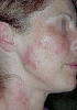 localisation: neck, cheek, diagnosis: Discoid Lupus Erythematosus (DLE)