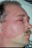localisation: visage , diagnostic: Erysypèle