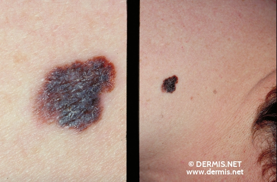 localisation: [n/a] diagnosis: Superficial Spreading Melanoma (SSM)