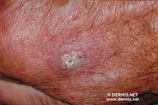 localisation: peri-oral diagnosis: Squamous Cell Carcinoma