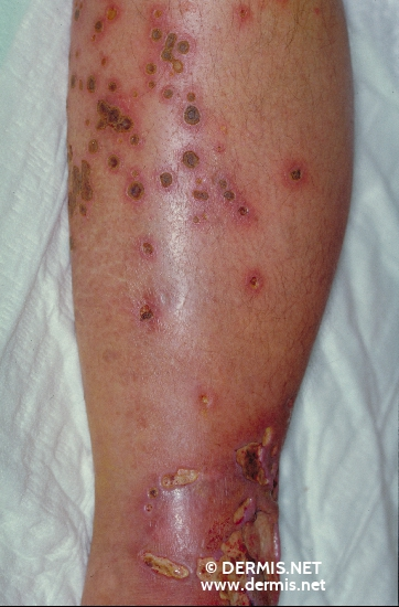 localisation: lower leg diagnosis: Reactive Perforating Collagenosis