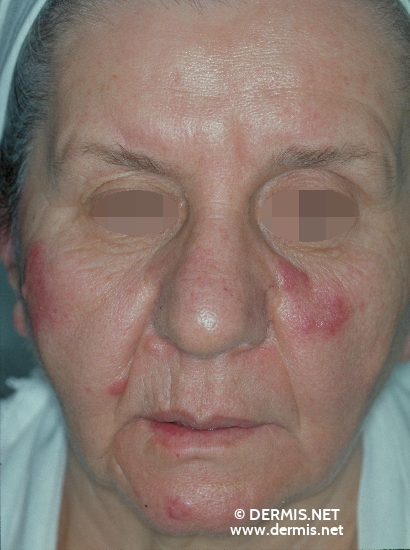 localisation: face diagnosis: Lupus Erythematosus Tumidus