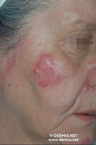localisation: cheek diagnosis: Lupus Erythematosus Tumidus