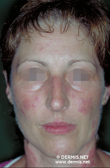 localisation: face diagnosis: Discoid Lupus Erythematosus (DLE)