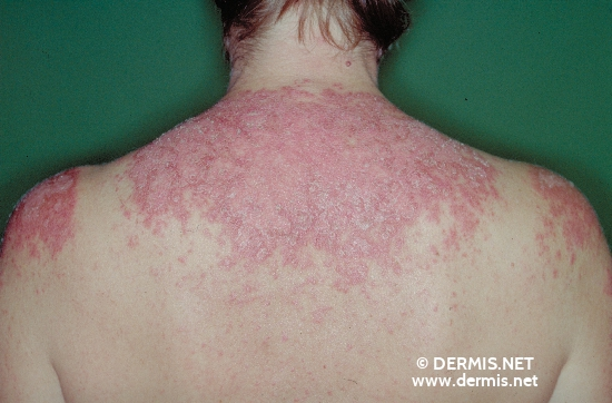 localisation: upper back diagnosis: Discoid Lupus Erythematosus (DLE)
