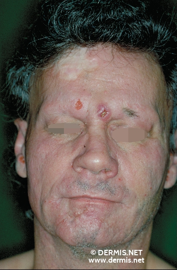 localisation: face diagnosis: Large Cell Anaplastic T-Cell Lymphoma