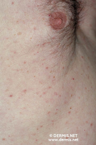 localisation: chest diagnosis: Urticaria Pigmentosa