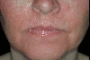 localisation: face, diagnosis: Pityriasis Rubra Pilaris Devergie