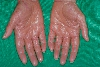 localisation: palms, diagnosis: Pityriasis Rubra Pilaris Devergie