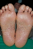 localisation: sole, diagnosis: Pityriasis Rubra Pilaris Devergie