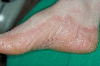 localisation: feet, diagnosis: Pityriasis Rubra Pilaris Devergie