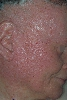 localisation: face, diagnosis: Herpes Simplex, Dyskeratosis Follicularis