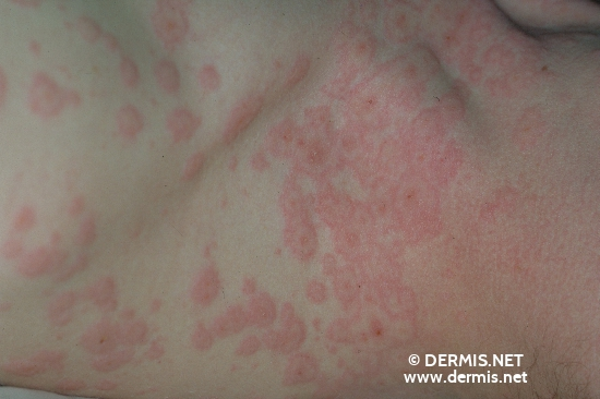 erythema multiforme causes #11
