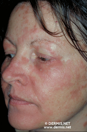 localisation: face diagnosis: Pityriasis Rubra Pilaris Devergie