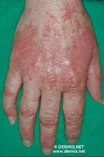 localisation: back of the hands diagnosis: Pityriasis Rubra Pilaris Devergie