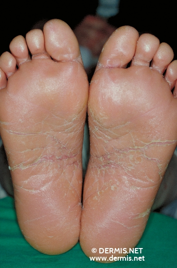 localisation: sole diagnosis: Pityriasis Rubra Pilaris Devergie