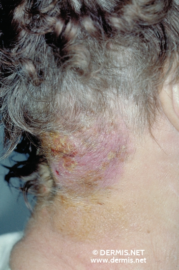 localisation: Hals Diagnose: Mycosis fungoides