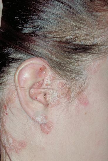 psoriasis inversa fotos