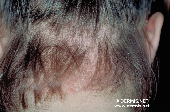 localisation: Kapillitium occipital Diagnose: Psoriasis inversa