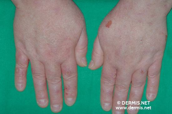 localisation: back of the hands diagnosis: Pseudoporphyria uraemica