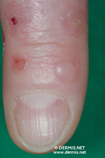localisation: finger diagnosis: Pseudoporphyria uraemica