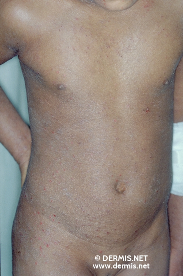 localisation: trunk diagnosis: Eczema Herpeticatum