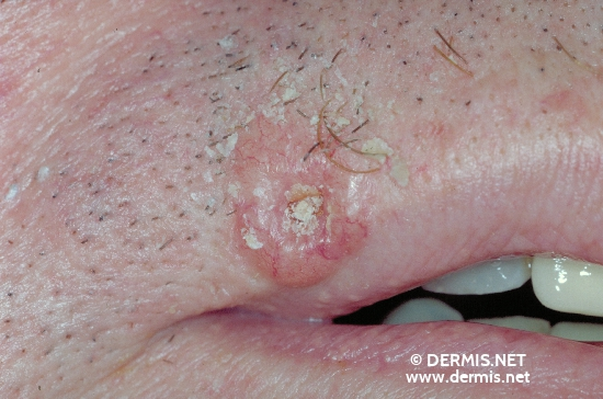 localisation: peri-oral diagnosis: Basal Cell Carcinoma