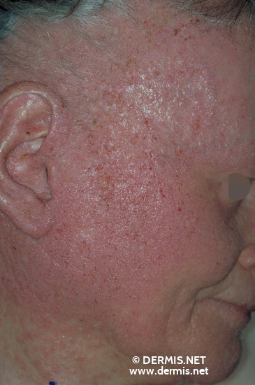 localisation: face diagnosis: Herpes Simplex Dyskeratosis Follicularis