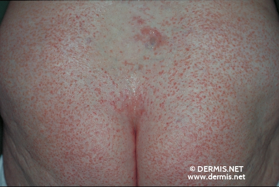localisation: buttocks diagnosis: Dyskeratosis Follicularis