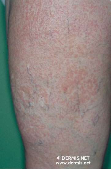 localisation: upper leg diagnosis: Dyskeratosis Follicularis Varicosis
