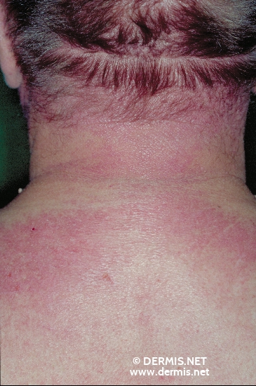 localisation: back of neck diagnosis: Dermatomyositis